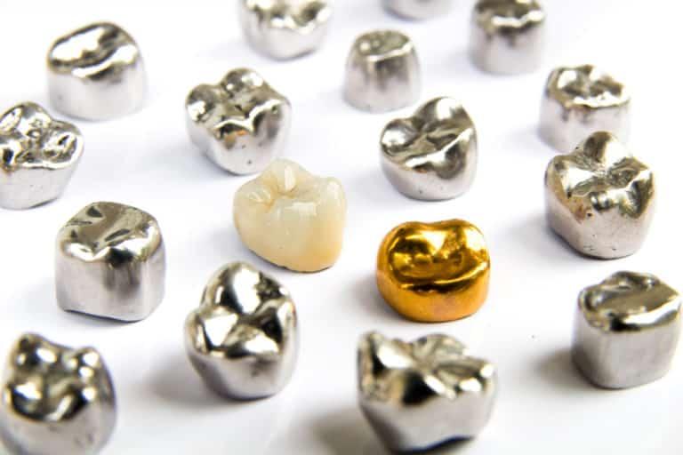 Assortment of crowns - Brentwood Dental