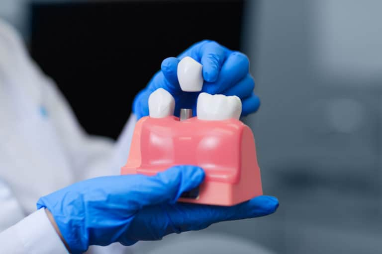 Dentist holding implant prop to demonstrate implant procedure - Brentwood Dental