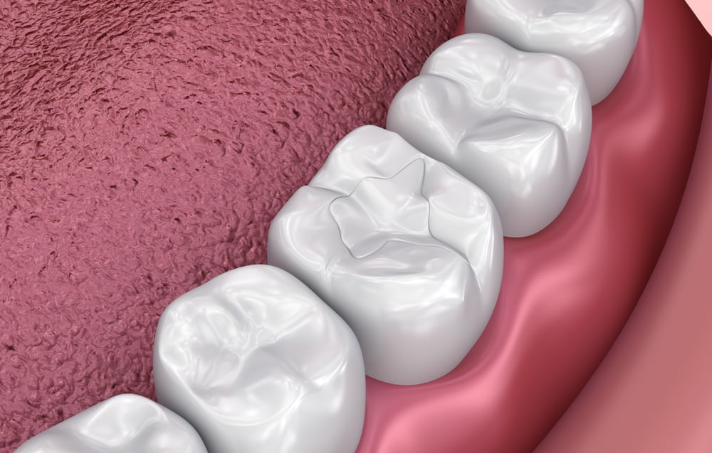 Illustration of sealants in mouth - Brentwood Dental