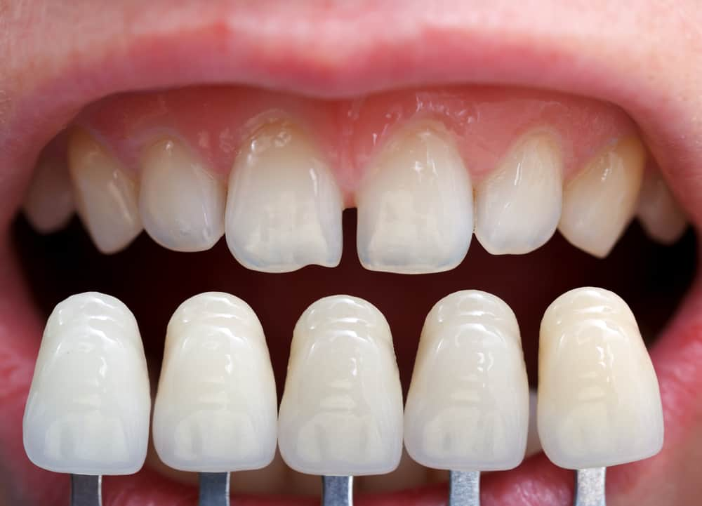 Lady with veneers shown against her teeth to compare - Brentwood Dental