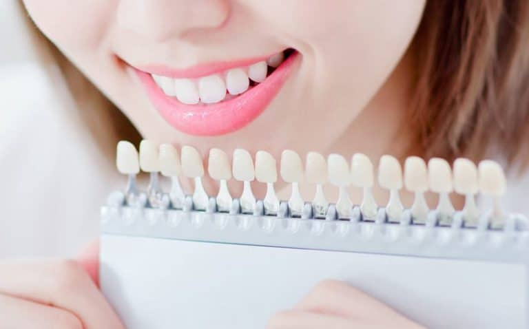 Lady comparing her teeth to colour chart - Brentwood Dental