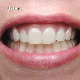 Lady with red lips before bleaching procedure - Brentwood Dental