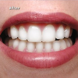 Lady with red lips after bleaching - Brentwood Dental