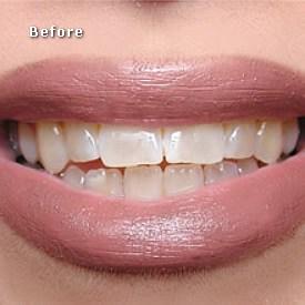 Lady before bleaching - Brentwood Dental