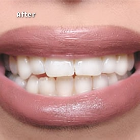 Lady after bleaching - Brentwood Dental
