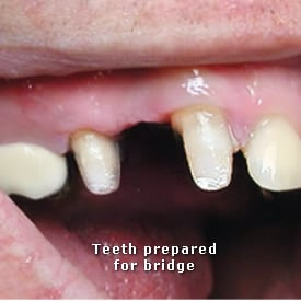 Lady with teeth prepared for the bridge to be fitted - Brentwood Dental
