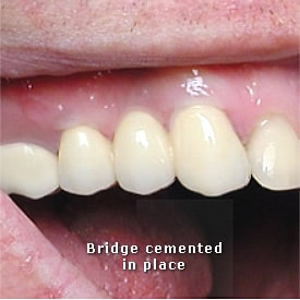 Lady with dental bridge cemented in place - Brentwood Dental