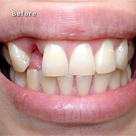 Lady before bridge fitted - Brentwood Dental