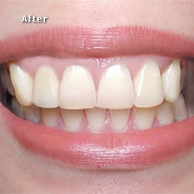 Lady after bridge fitted - Brentwood Dental
