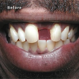 Black man with dental bridges to be fitted - Brentwood Dental
