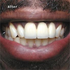 Black man after bridge fitted - Brentwood Dental