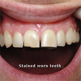 Man with stained and worn teeth - Brentwood Dental