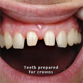 Man with teeth prepared for crowns - Brentwood Dental