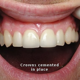 Man after crowns cemented in place - Brentwood Dental