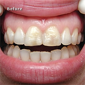Lady with red lips before crowns fitted - Brentwood Dental