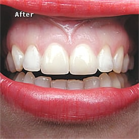 Lady with red lips after crowns fitted - Brentwood Dental