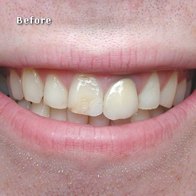 Lady before crowns fitted - Brentwood Dental