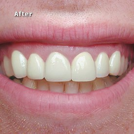 Lady after crowns fitted - Brentwood Dental