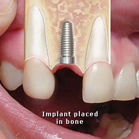 Lady with implant placed in bone - Brentwood Dental