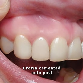 Lady with crown cemented onto post - Brentwood Dental