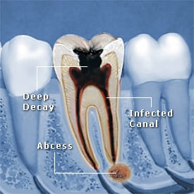 Tooth with deeo decay and Abscess and infected canal - Brentwood Dental