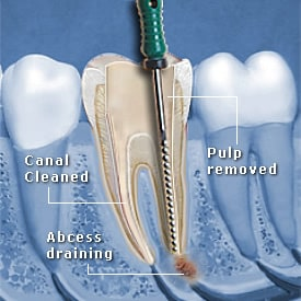 Tooth Abscess being drained and canal cleaned - Brentwood Dental