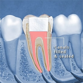 Tooth canal filled and sealed - Brentwood Dental