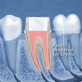 Tooth prepared for crown on top of treated canal - Brentwood Dental