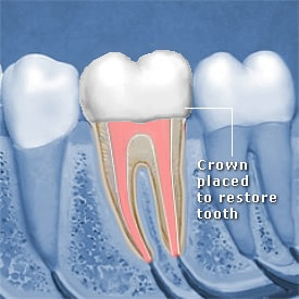 Root canal diagram with crown placed to restore tooth - Brentwood Dental