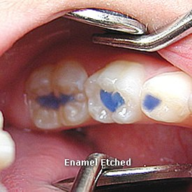 Lady with enamel etched - Brentwood Dental