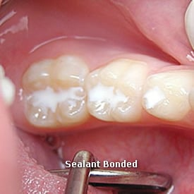 Lady with sealant bonded - Brentwood Dental