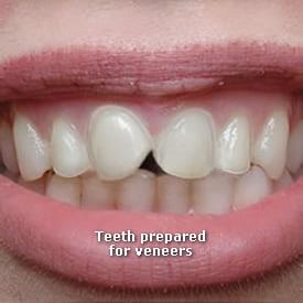 Lady with teeth prepared for veneers - Brentwood Dental