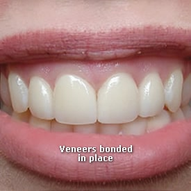 Lady with veneers bonded in place - Brentwood Dental