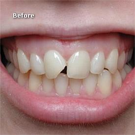 Lady before veneers prepared - Brentwood Dental