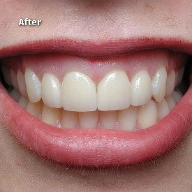 Lady after veneers in place - Brentwood Dental