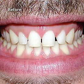 Man before veneers prepared - Brentwood Dental