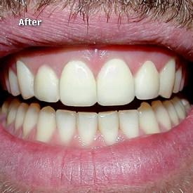 Man with veneers in place - Brentwood Dental