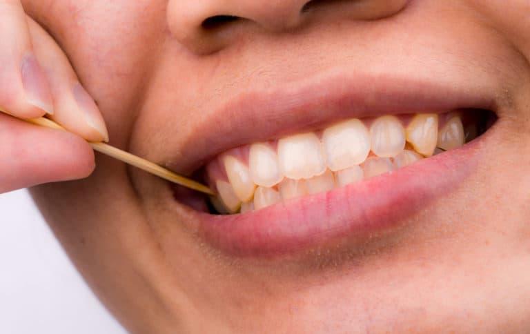 Man with gum disease - Brentwood Dental