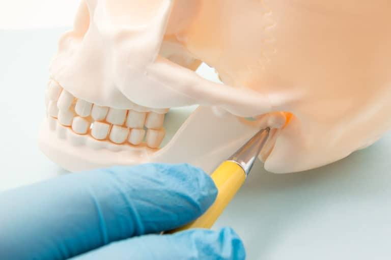 TMJ Disorder skeleton model - Brentwood Dental
