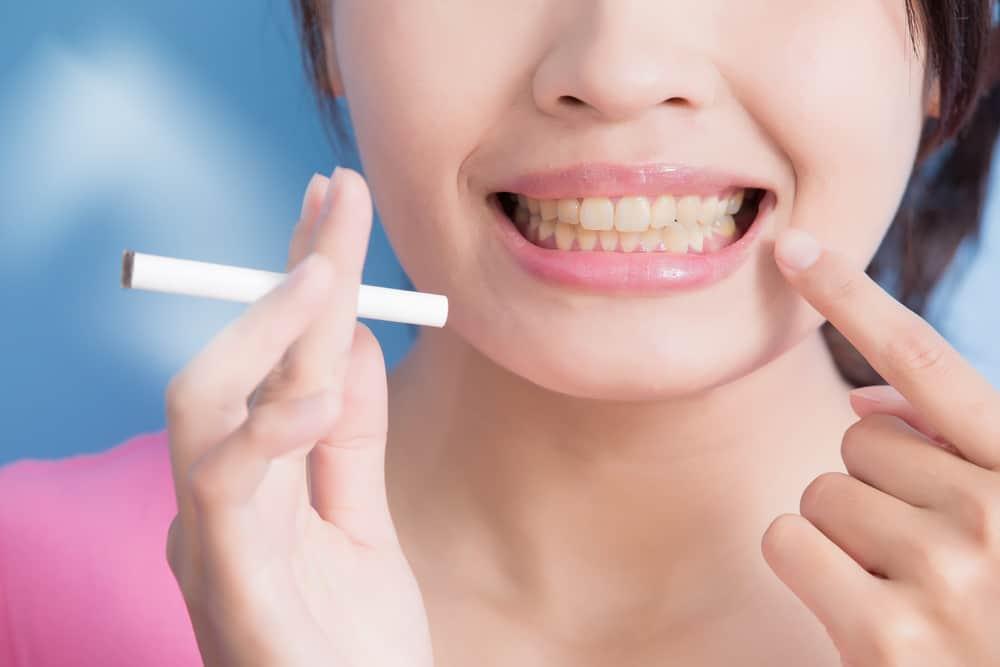 Smoking damage to patients teeth