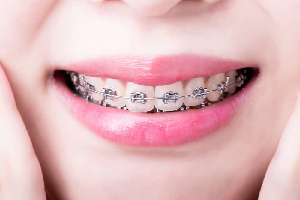 Braces close up - Brentwood Dental