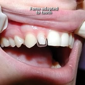 Lady with bonding ready to be sealed - Brentwood Dental