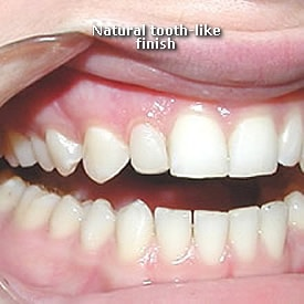 Lady with natural tooth finish after bonding - Brentwood Dental