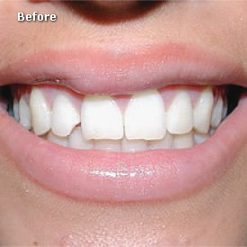 Lady with cracked tooth before bonding - Brentwood Dental