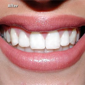 Lady after bonding of her teeth - Brentwood Dental