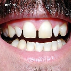 Man before recent bonding of the front teeth - Brentwood Dental