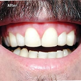 Man with recent bonding of the front teeth - Brentwood Dental