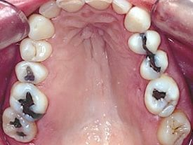 Porcelain Inlays Full Mouth Close Up Before Procedure - Brentwood Dental