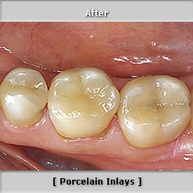 Porcelain Inlays Image 2 After Procedure - Brentwood Dental